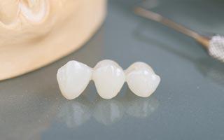 Zahnersatz bei Zahnverslust Berlin