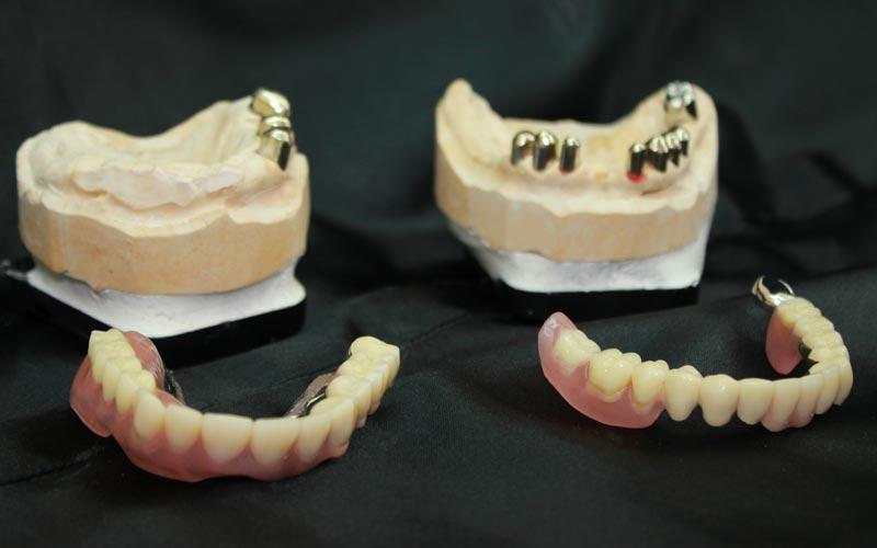 Möglichkeit für Zahnersatz