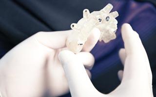 Behandlungsablauf Zahnimplantate