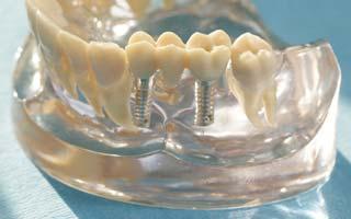 Knochenaufbau vor der Implantatbehandlung