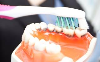 Schutz vor ansteckender Parodontose